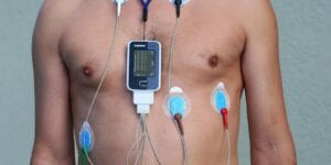 Man wearing a Holter Monitor. It is used record a patient's heart rhythm and worn for a 24-48hour period.